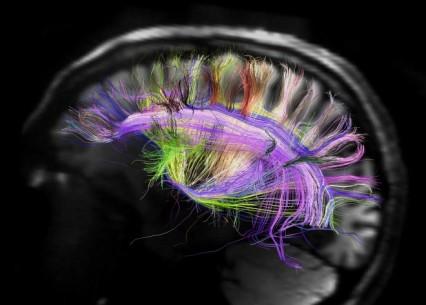 rainbow-brain-map-science-aaas-660x473.jpg